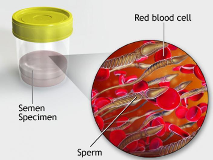 Признаки простатита кровь в сперме простатит поздняя стадия